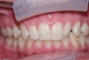 patient with crooked tooth