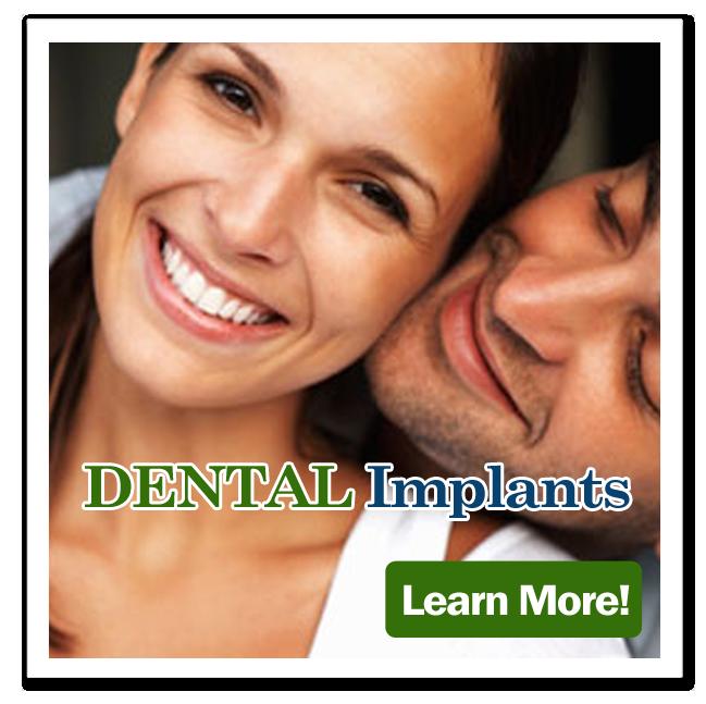 dental_implants_butt.png