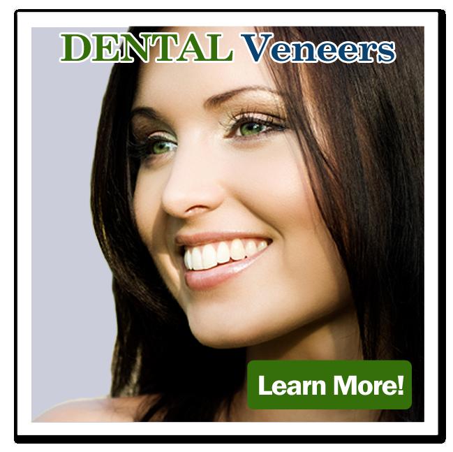 dental_veneers_butt.png