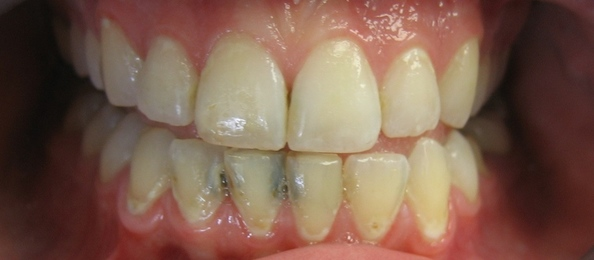 Old crown and bridge restorations with exposed metal margins and gingival recession