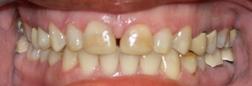 Anterior hybrid resins, incisal wear and breakdown