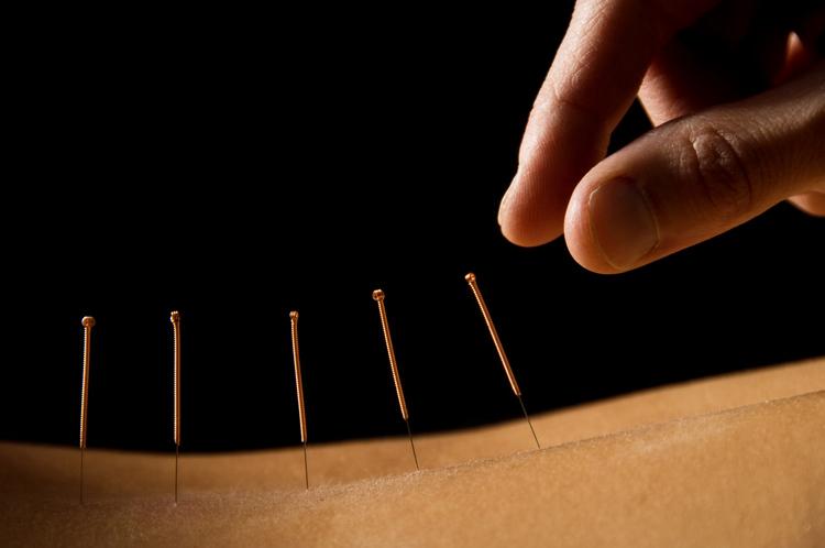 Carol Stream Chiropractor | Carol Stream chiropractic Acupuncture |  IL |