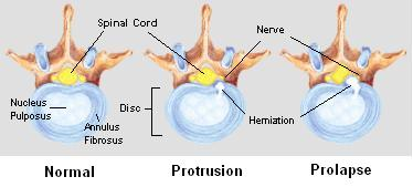 herniated_disc.png