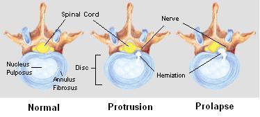 herniated_disc.png