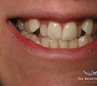 before Lower Incisor Extraction