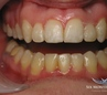 after Lower Incisor Extraction