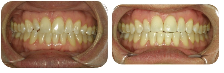 <p>Belpree Dental</p> in Amarillo TX