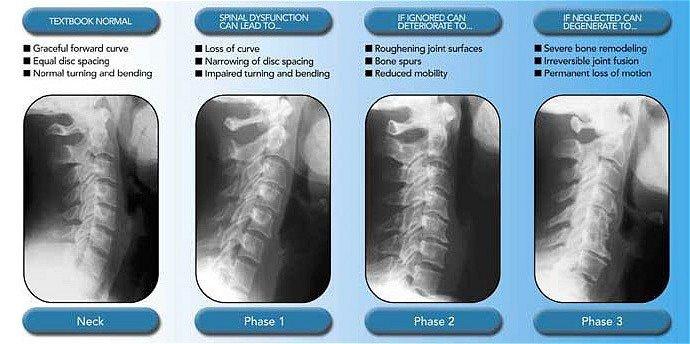 Toms River Chiropractor | Toms River chiropractic Spinal Degeneration |  NJ |