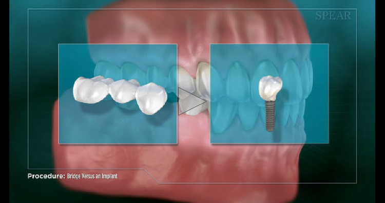 treatments_bridge_vs_implant.png