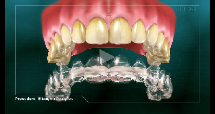 treatments_whitening_and_bleaching_trays.png