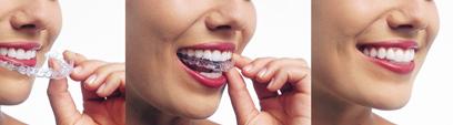 Carthage Dentist | Dentist in Carthage