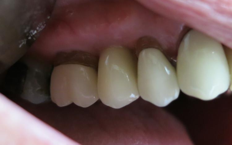 Claudia_implant_3.jpg