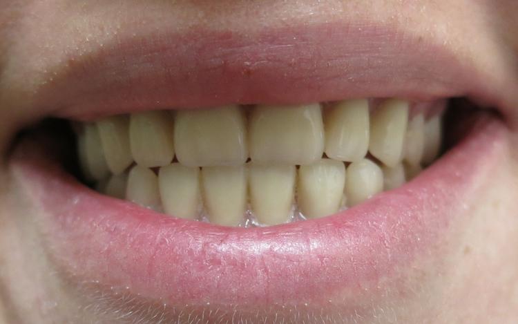 Eleesha_implant_denture_1.jpg