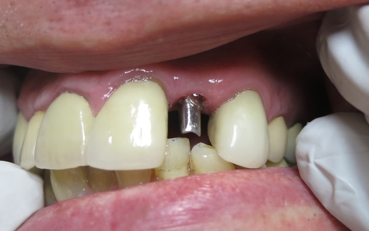 John_implant_1.jpg