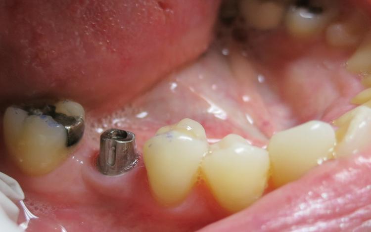 Karen_implant_1.jpg