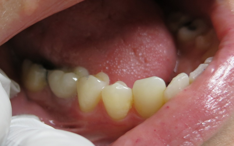 Karen_implant_2.jpg