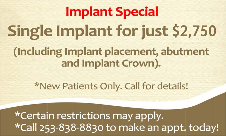 2implant_special.png