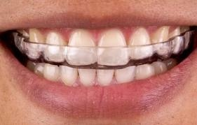 <p>Regal Oaks Dental Office</p> <p>Hiren Patel DMD, PA &amp; Associates</p> in Charlotte NC