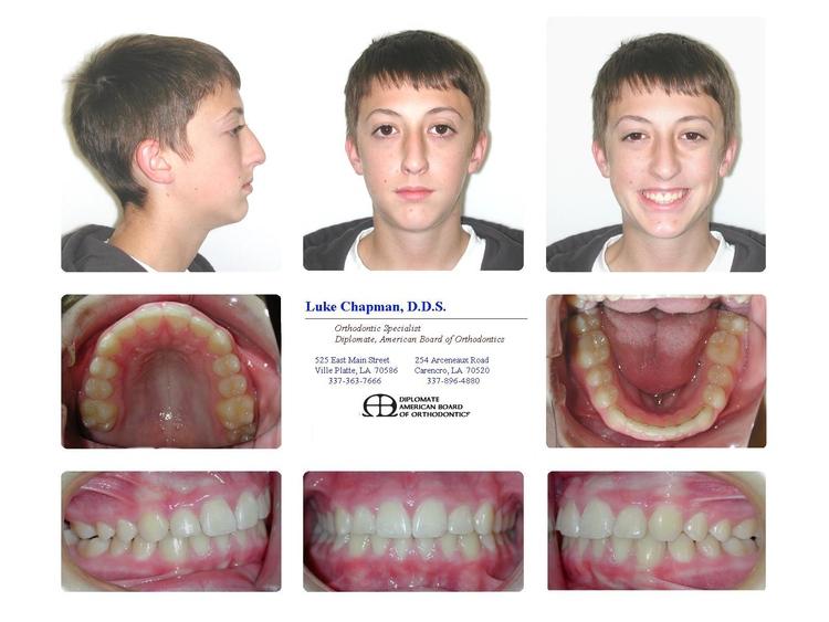 <p>Luke Chapman Orthodontics, LLC</p> in Ville Platte LA