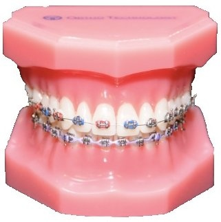 metal_braces_teeth1.jpg