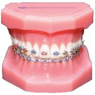 metal_braces_teeth1.jpg