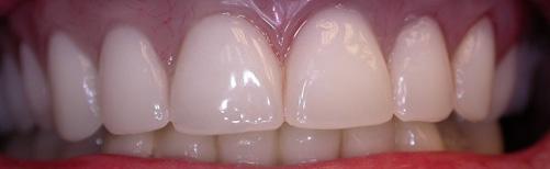 Denture02.jpg