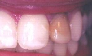 Implants05.jpg