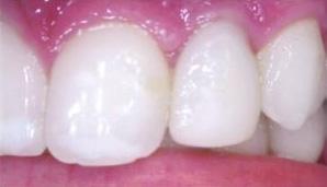 Implants06.jpg