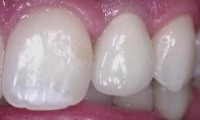 Implants07.jpg
