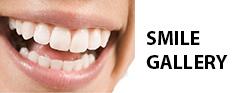 smile_button.jpg