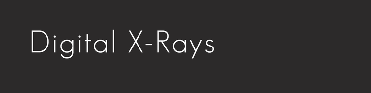 DigitalX_Rays__Black.png