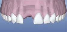 ImplantAnterior1.jpg