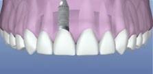 ImplantAnterior2.jpg