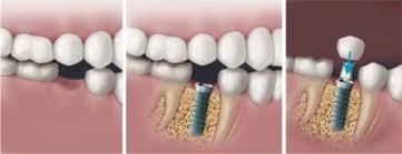 ImplantSingleToothPic.jpg