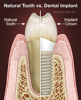 Implant_Tooth.jpg