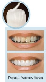 Salem Dentist | Salem dental Lumineers |  OR