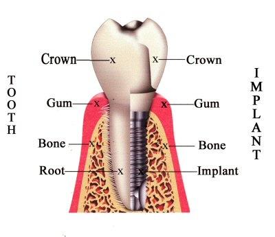 Dr. Fenlon DDS - Dental Implant image