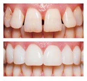 Dr. Fenlon DDS - Dental Veneer Image