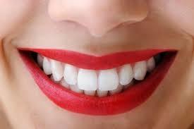 dental_bonding1.jpg