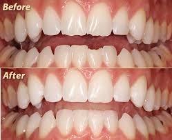 dental_bonding2.jpg