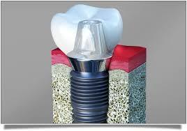 implants1.jpg