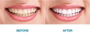 teeth_whitening1.png