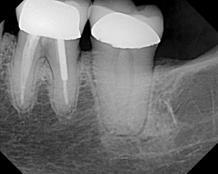 Molar_RCTC_Shaped_Canals2.JPG