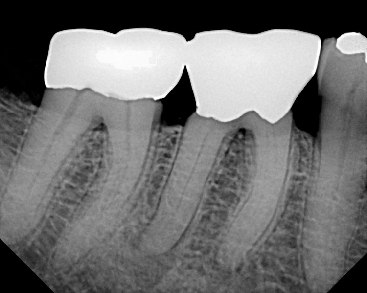 Molar_RCTCalcified_Canals2.JPG
