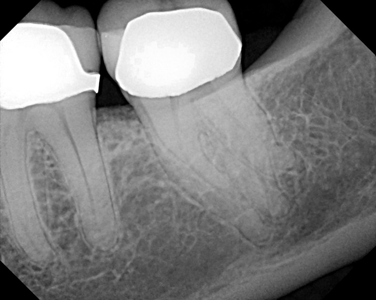 Molar_RCTFour_Roots2.JPG