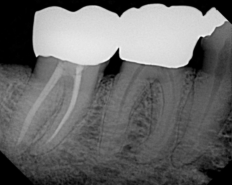 molar_rct_curved_roots2.JPG
