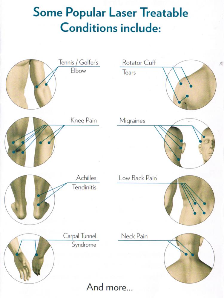 Westport Chiropractor   Westport chiropractic Common Treatable Conditions    CT  