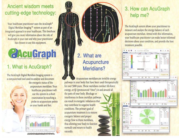 AcuGraph_1.jpg