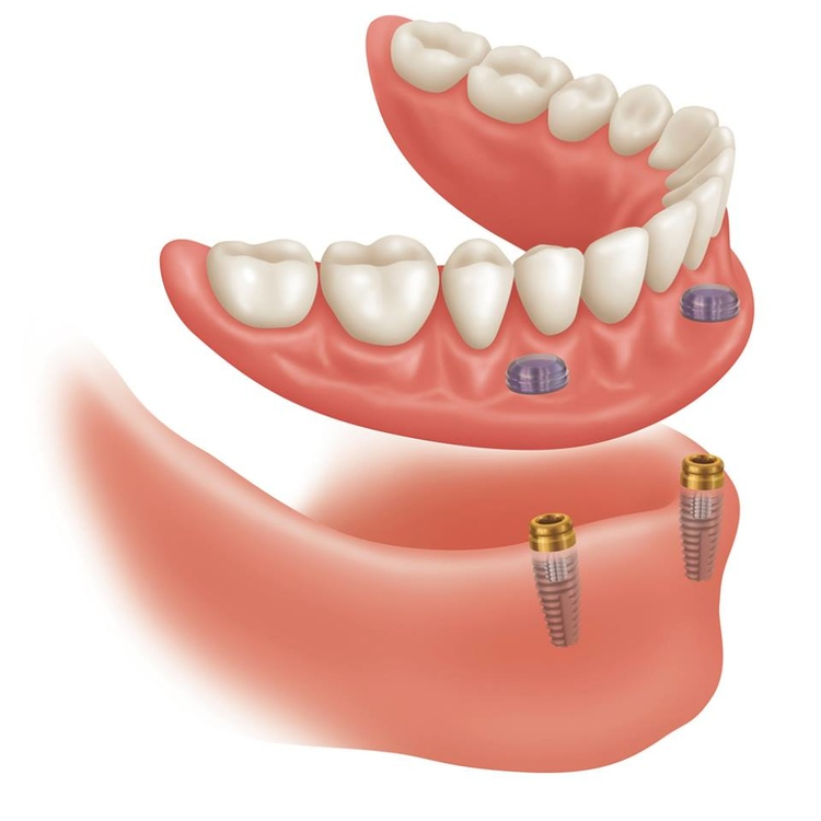 Implant_Overdenture_photo.jpg