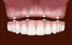 Invisalign in Brandon Florida